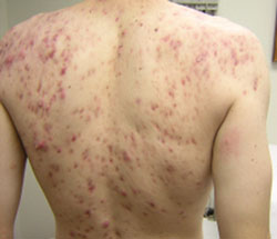Cystic Acne On Back