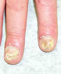 Natural remedies for nail fungus infection